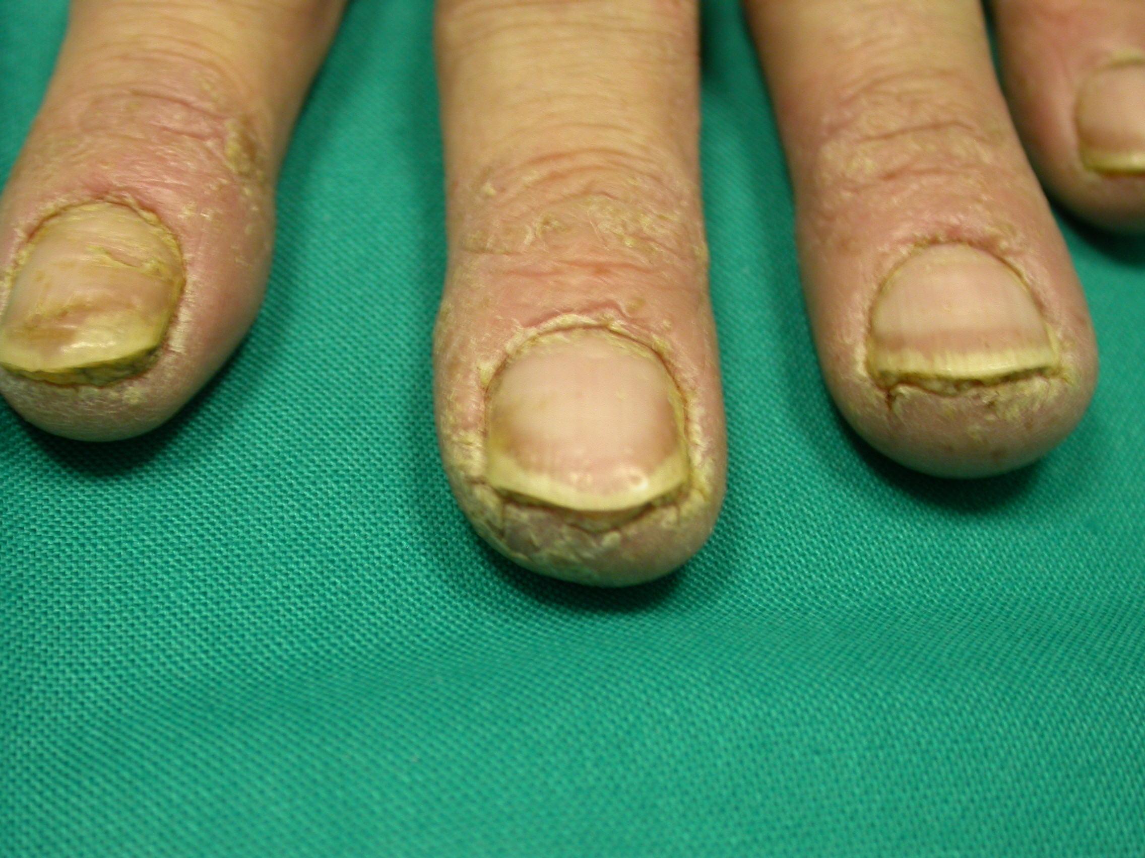 Dicembre 2013 foto in evidenza atlante dermatologico for Planimetrie da 1200 piedi quadrati