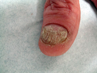 Cura di eczema esterna