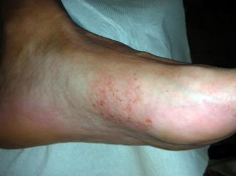 Dermaleks atopik prezzo di crema di eczema