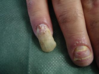 Quello che gli unguenti aiutano a eczema su mani