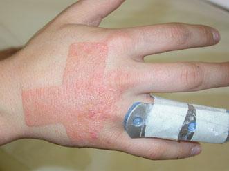 Medicina tradizionale di eczema